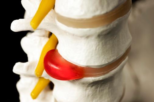 Грыжа позвоночника:Как лечить грыжу позвоночника в домашних условиях без операции