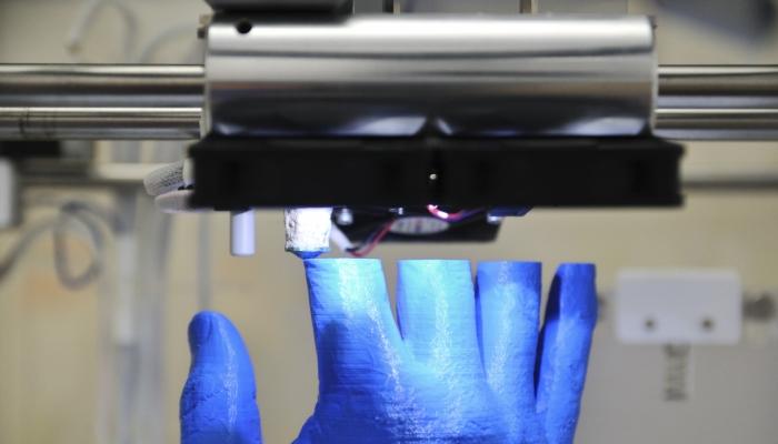 Школьник распечатал на 3D-принтере шину, ускоряющую заживление переломов